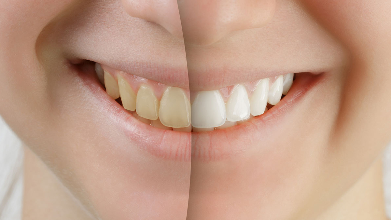 Cosmetic Dentistry in Nipawin