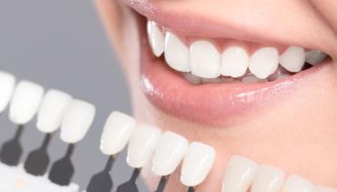 Teeth Whitening in Nipawin