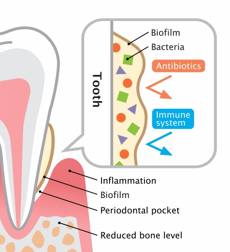 Dental Hygiene Services